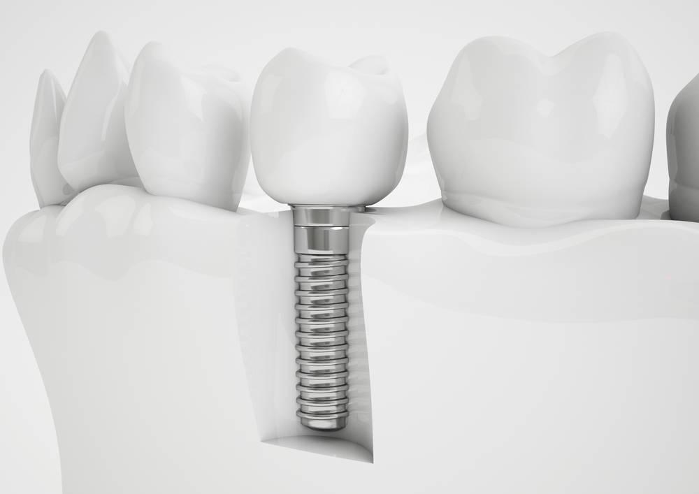 Implante dental vs puente