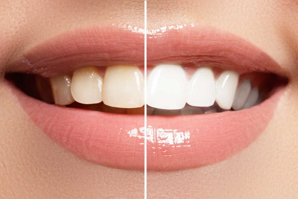 ¿Cómo elegir el mejor blanqueamiento dental?