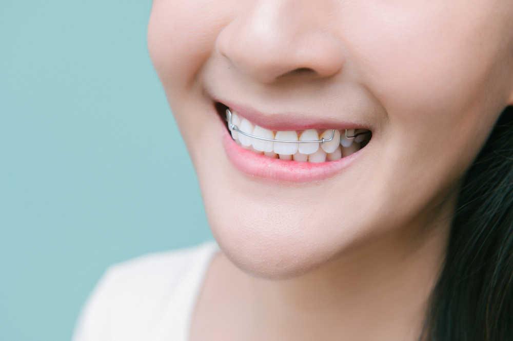 Odontología conservadora, que es y para qué sirve