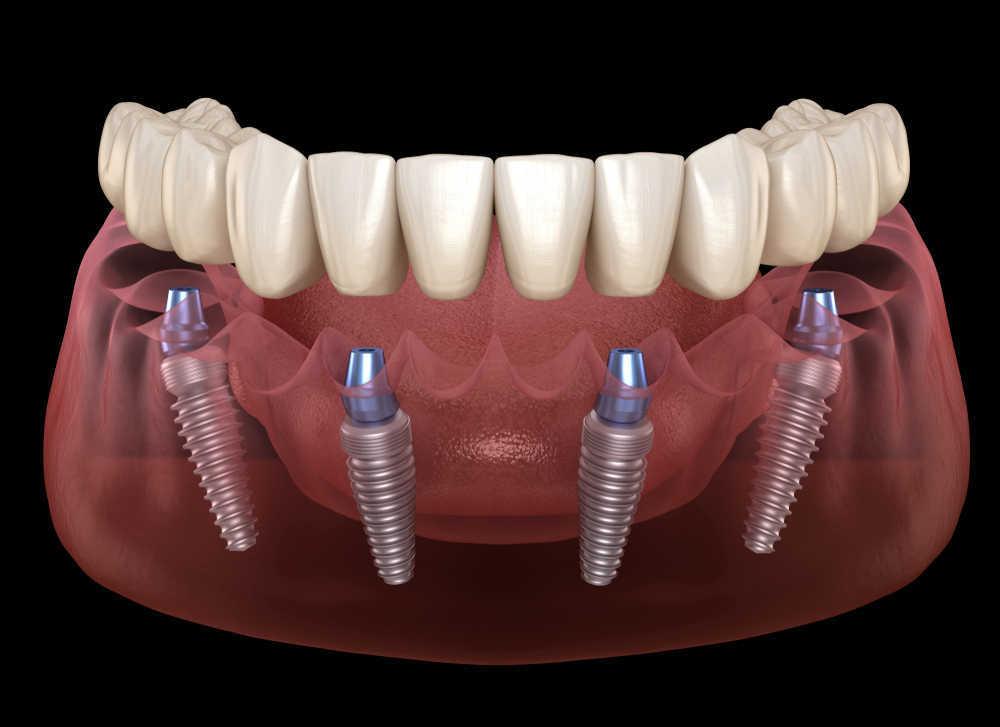 Preguntas y respuestas sobre los implantes dentales