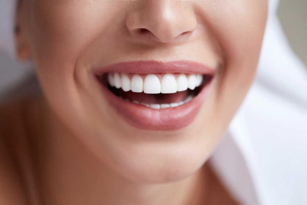 Los mejores tratamientos para tener una boca sana y cuidada